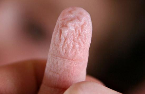 При сексе у полового члена кожа лопается